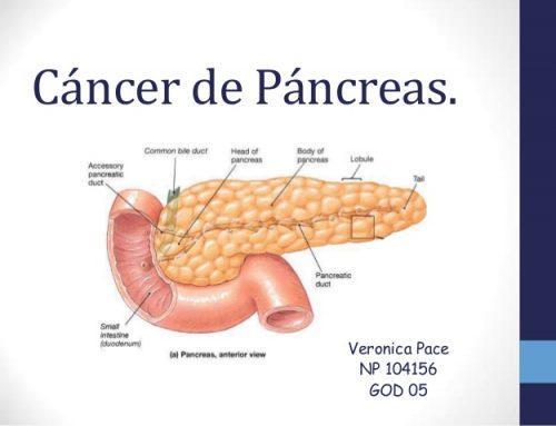 Científicos de EE.UU. afirman cómo detener el desarrollo del cáncer de páncreas
